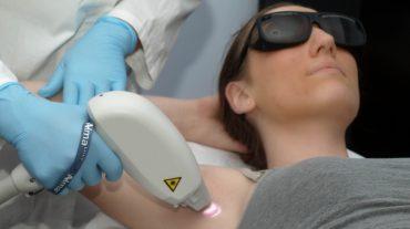 Patentan un nuevo método que permite identificar si un sujeto sufrirá quemaduras durante la fotodepilación